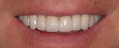 Veneers - Hartforde Dental Centre